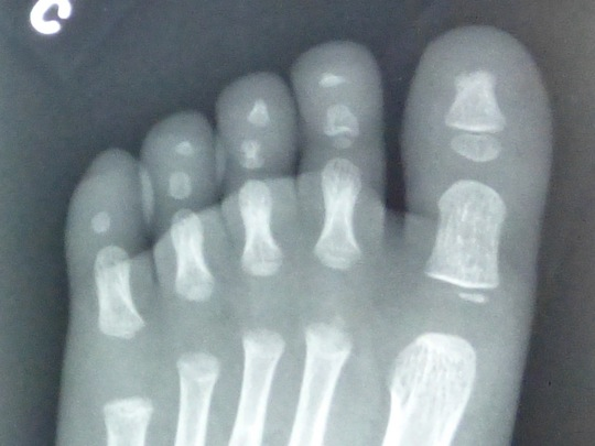 Samuel's Foot X-Ray